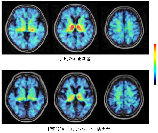 図6:α4β2ニコチン受容体イメージング薬剤[18F]2FAを用いて、 頭部用PET装置で正常者及び認知症患者を撮影した画像