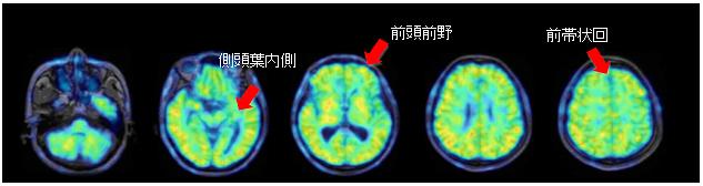 図7:α7ニコチン受容体イメージング薬剤[11C]Me-QAAを用いて、 非拘束の頭部用PET装置で認知症患者を撮影した画像