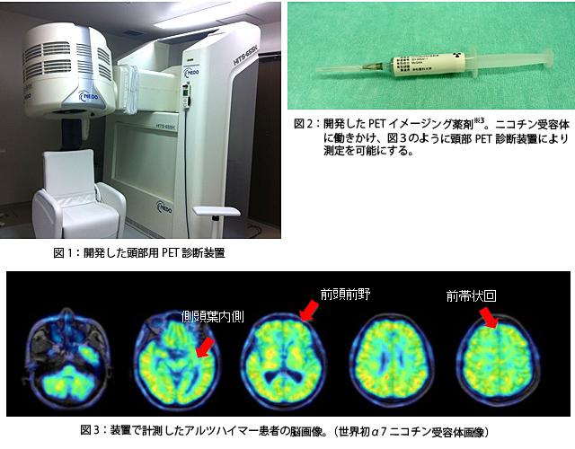 開発した頭部用PET診断装置、開発したPETイメージング薬剤、装置で計測したアルツハイマー患者の脳画像