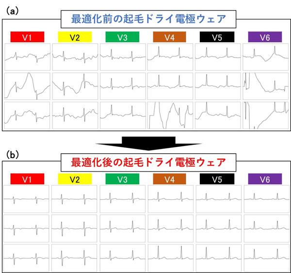 最適化前(a)後(b)の起毛ドライ電極ウェアを用いた胸部誘導の心電図計測結果